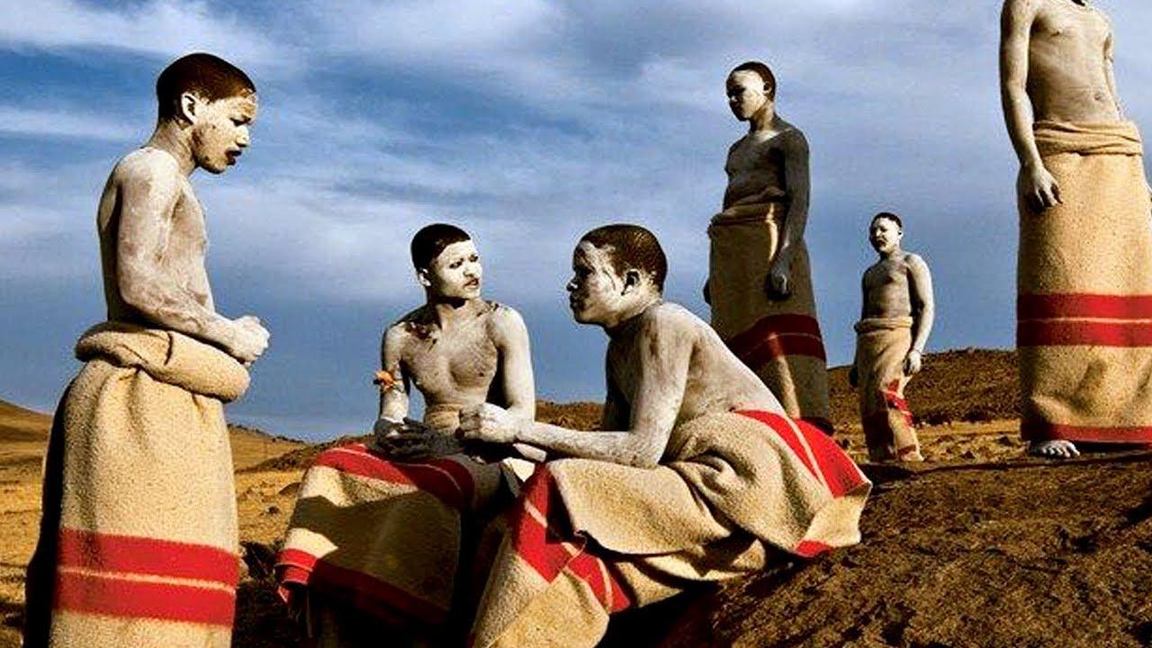 Afrique du Sud: la circoncision est efficace dans la lutte contre le sida (VIH)